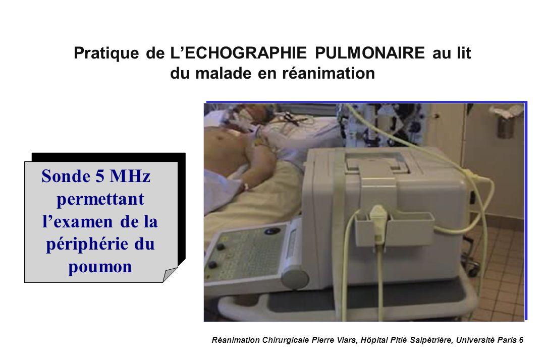 Pratique de L'ECHOGRAPHIE PULMONAIRE au lit du malade en réanimation