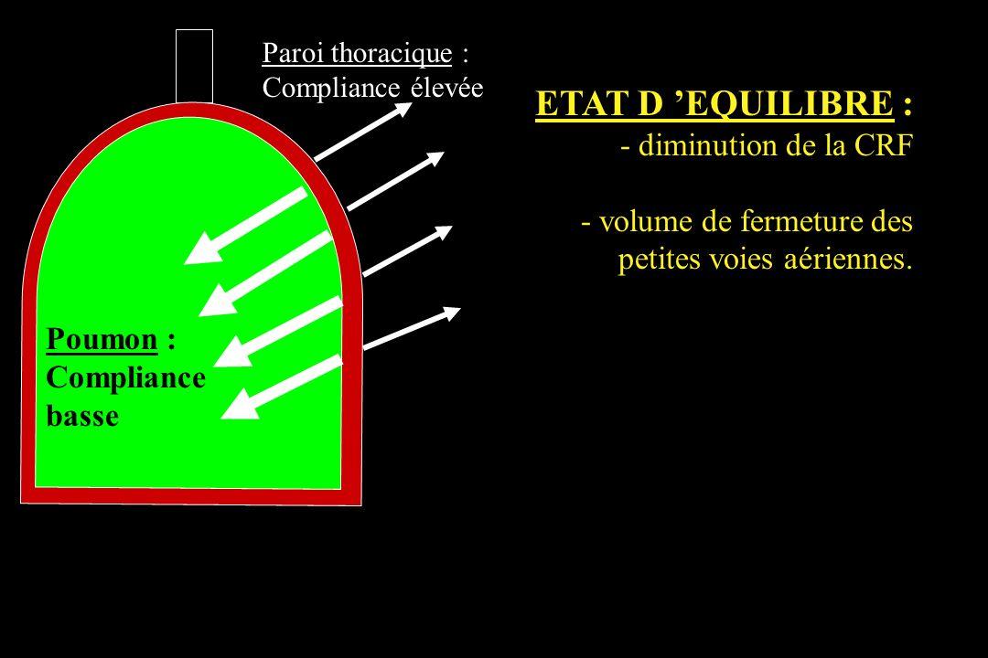 ETAT D 'EQUILIBRE : - diminution de la CRF