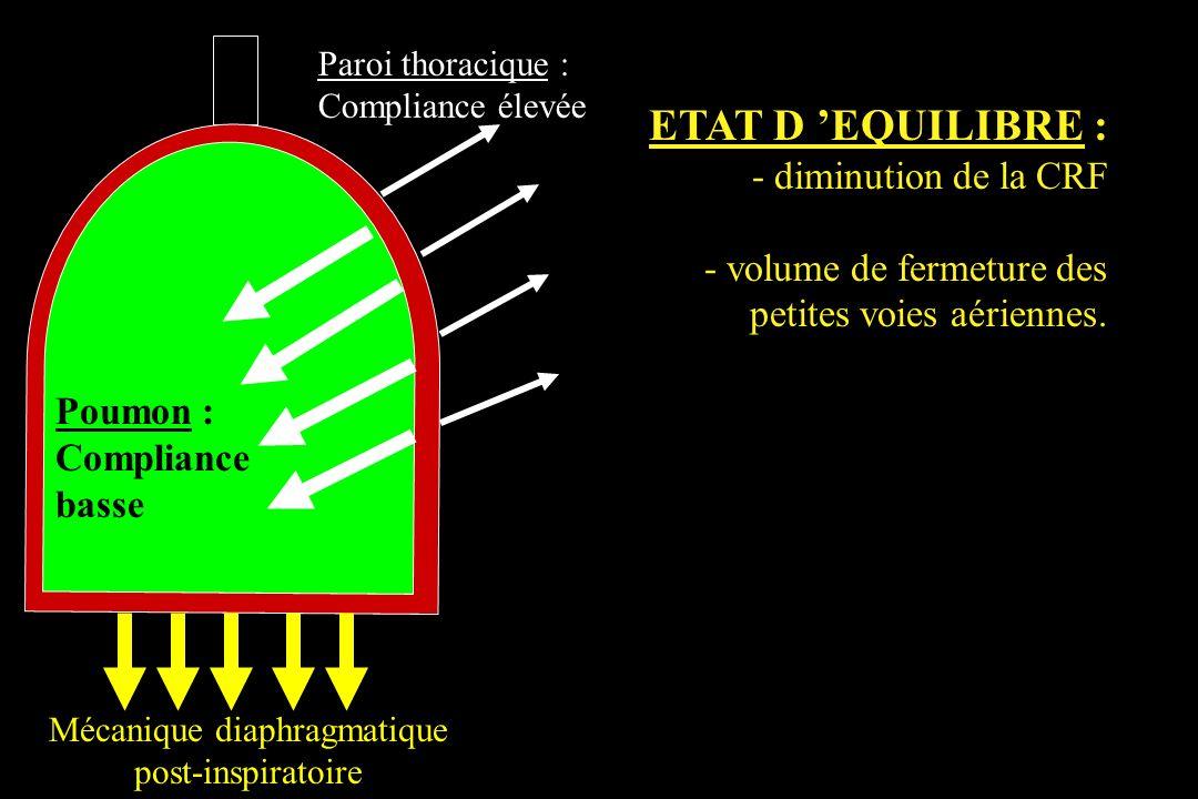 Mécanique diaphragmatique
