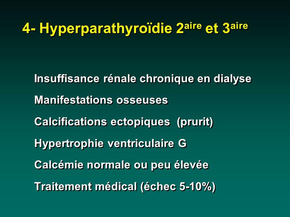 4- Hyperparathyroïdie 2aire et 3aire