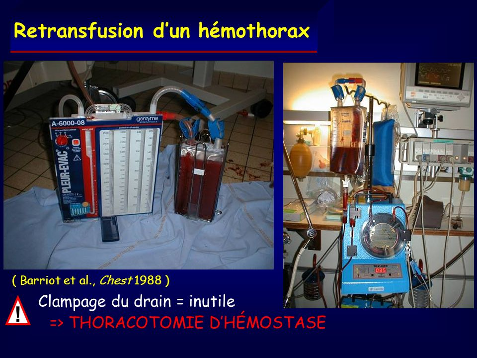 ! Retransfusion d'un hémothorax => THORACOTOMIE D'HÉMOSTASE