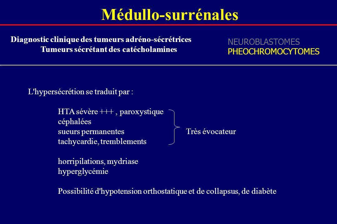 Médullo-surrénales Diagnostic clinique des tumeurs adréno-sécrétrices