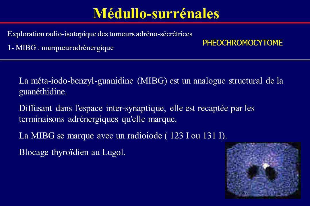 Médullo-surrénales Exploration radio-isotopique des tumeurs adréno-sécrétrices. 1- MIBG : marqueur adrénergique.