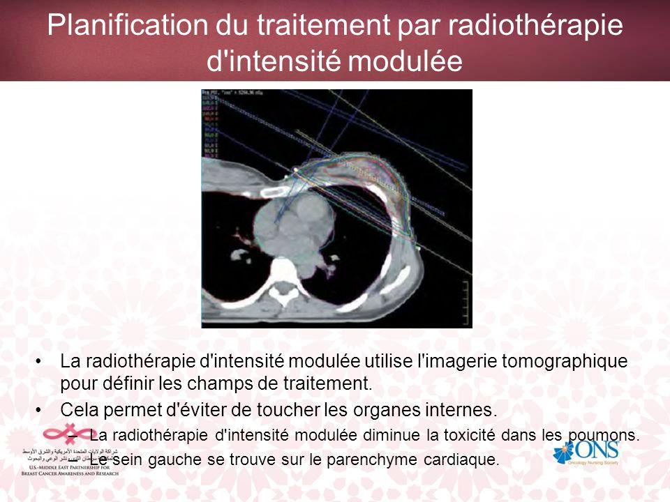 Planification du traitement par radiothérapie d intensité modulée