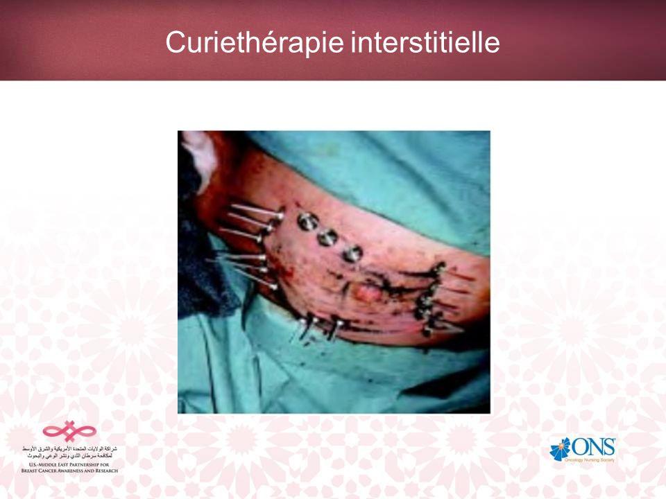 Curiethérapie interstitielle