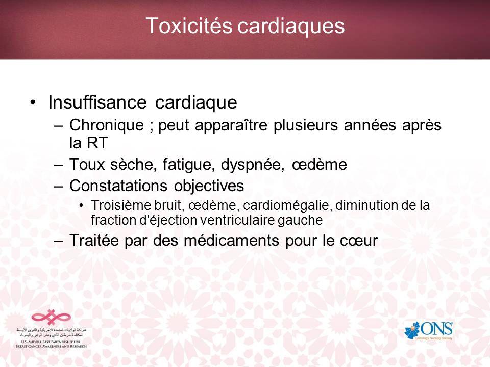 Toxicités cardiaques Insuffisance cardiaque