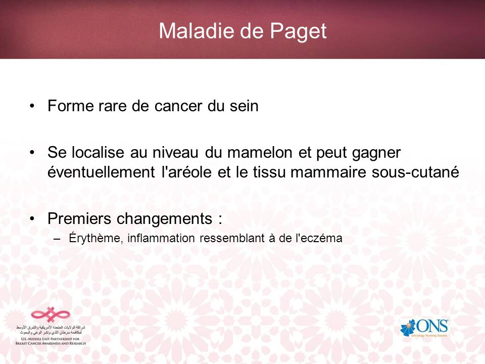 Maladie de Paget Forme rare de cancer du sein