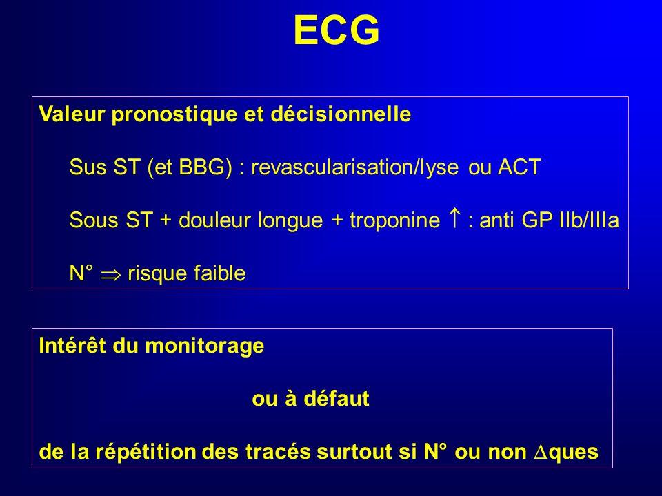 ECG Valeur pronostique et décisionnelle