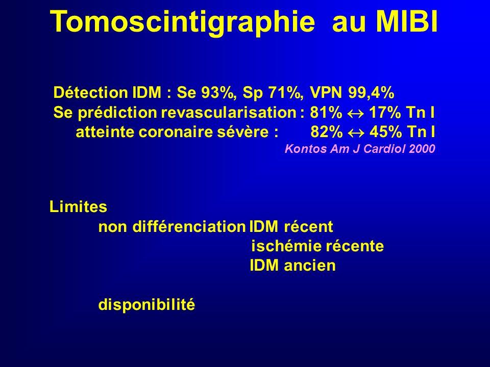 Tomoscintigraphie au MIBI