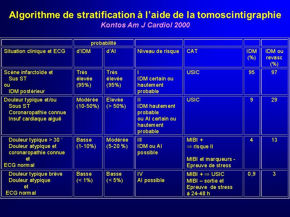 Algorithme de stratification à l'aide de la tomoscintigraphie
