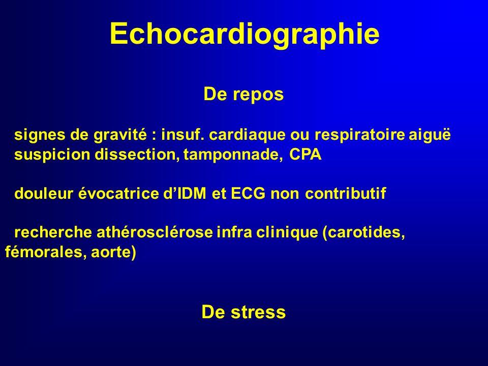 Echocardiographie De repos De stress