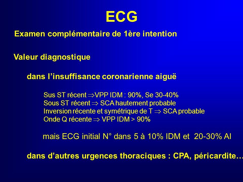 ECG Examen complémentaire de 1ère intention Valeur diagnostique