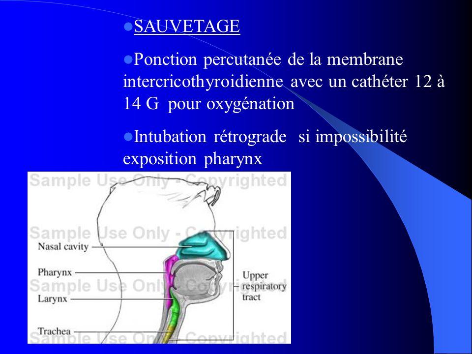 SAUVETAGE Ponction percutanée de la membrane intercricothyroidienne avec un cathéter 12 à 14 G pour oxygénation.