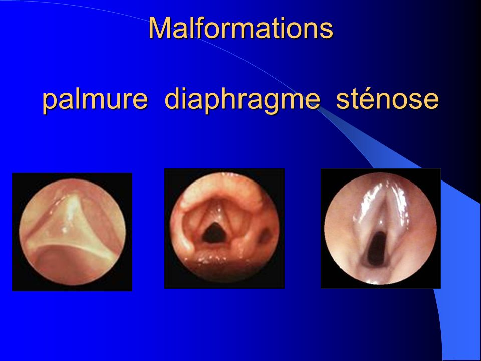 Malformations palmure diaphragme sténose