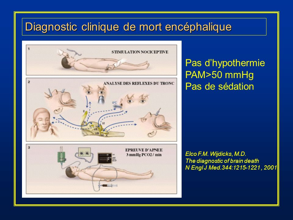 Diagnostic clinique de mort encéphalique