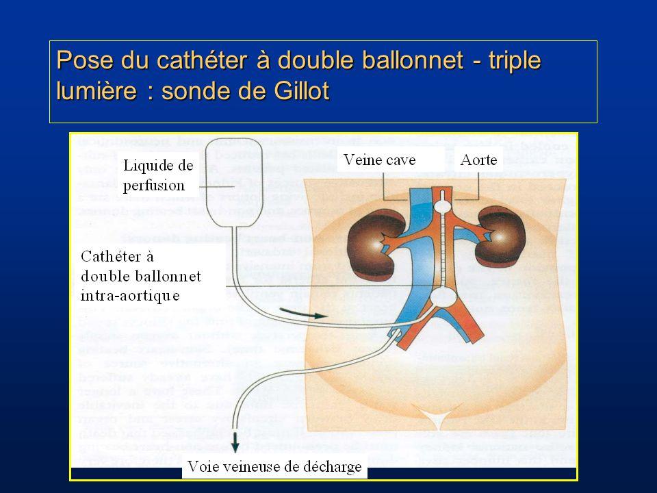 Pose du cathéter à double ballonnet - triple lumière : sonde de Gillot