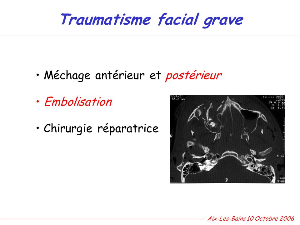 Traumatisme facial grave