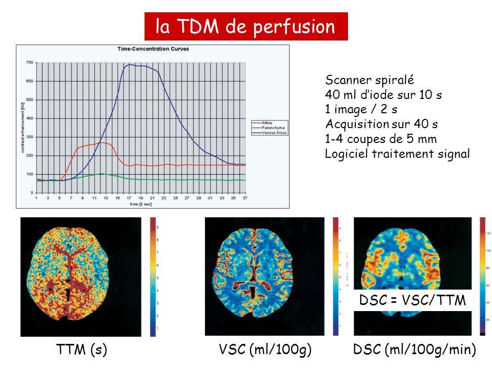 la TDM de perfusion DSC = VSC/TTM TTM (s) VSC (ml/100g)