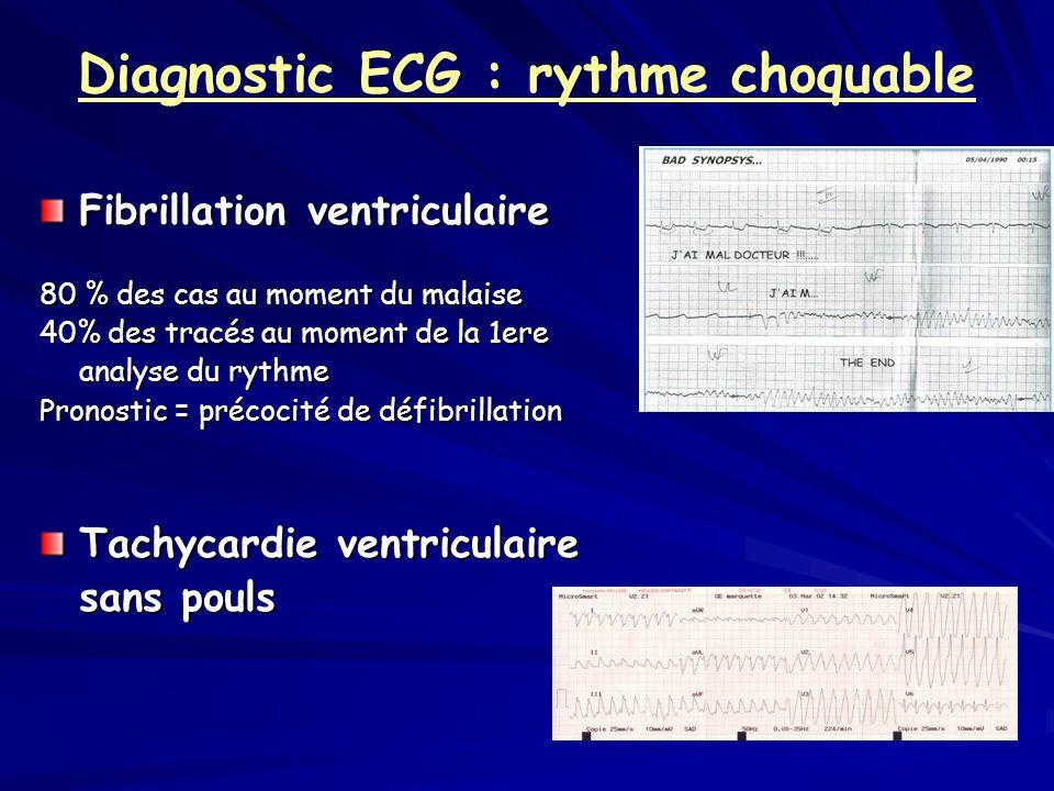 Diagnostic ECG : rythme choquable
