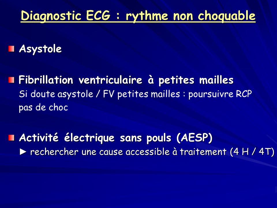 Diagnostic ECG : rythme non choquable