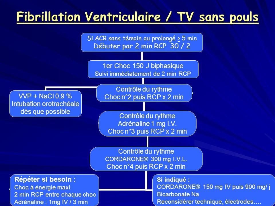 Fibrillation Ventriculaire / TV sans pouls