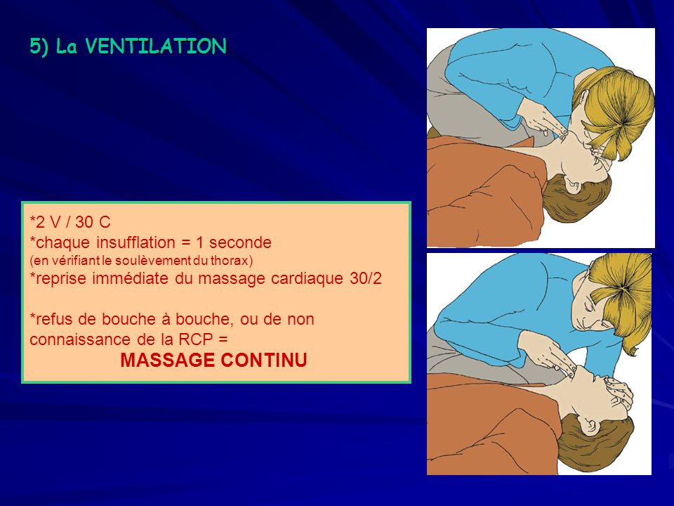 5) La VENTILATION *2 V / 30 C *chaque insufflation = 1 seconde