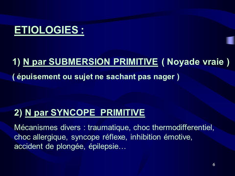 ETIOLOGIES : 1) N par SUBMERSION PRIMITIVE ( Noyade vraie )