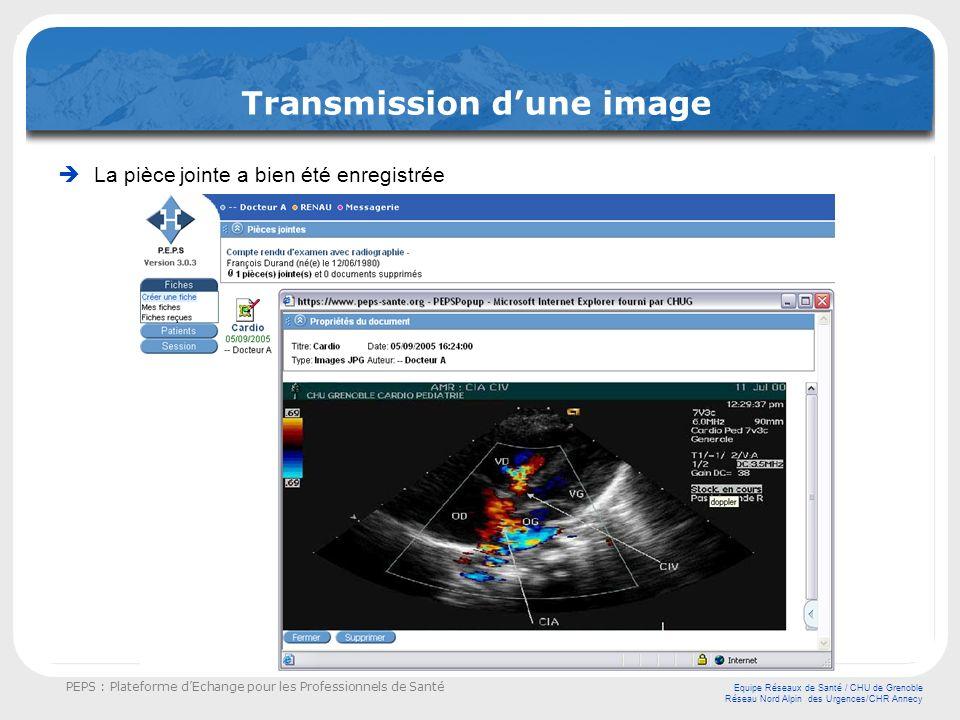 Transmission d'une image