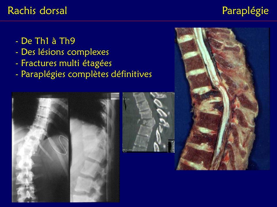 Rachis dorsal Paraplégie - De Th1 à Th9 - Des lésions complexes