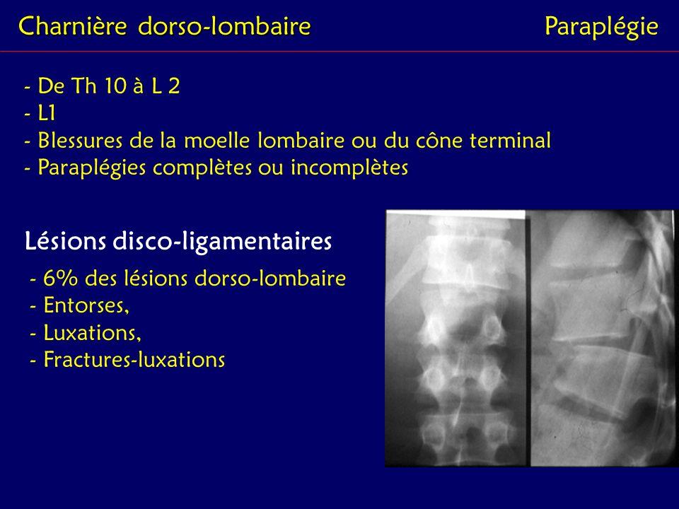Charnière dorso-lombaire Paraplégie