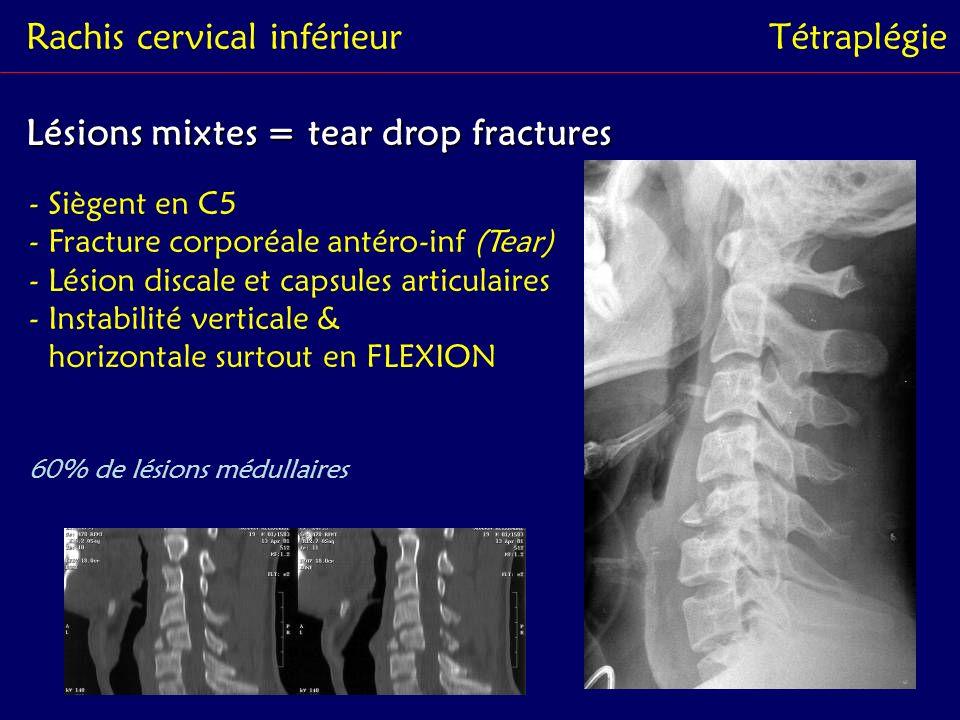 Rachis cervical inférieur Tétraplégie