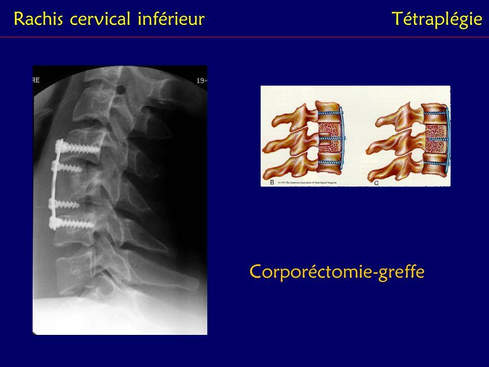 Rachis cervical inférieur