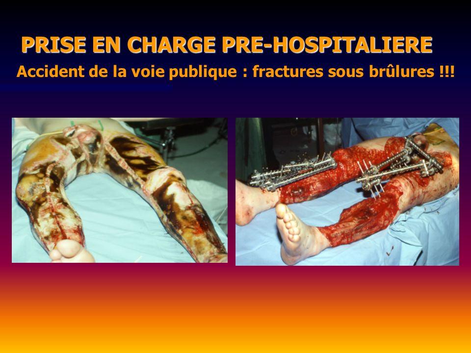 Accident de la voie publique : fractures sous brûlures !!!