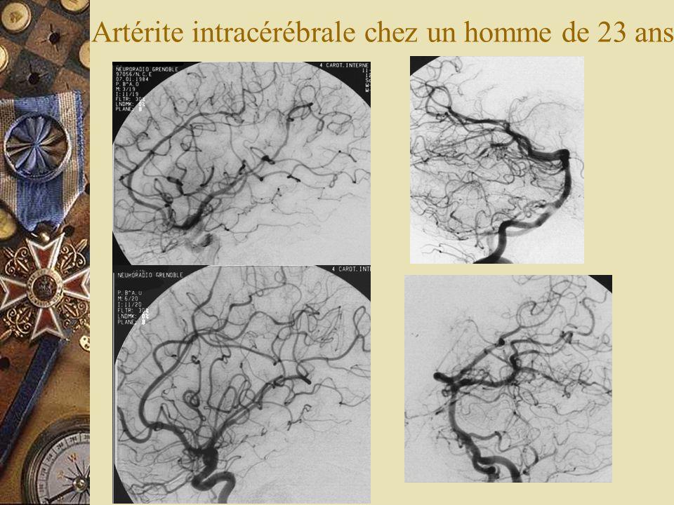 Artérite intracérébrale chez un homme de 23 ans