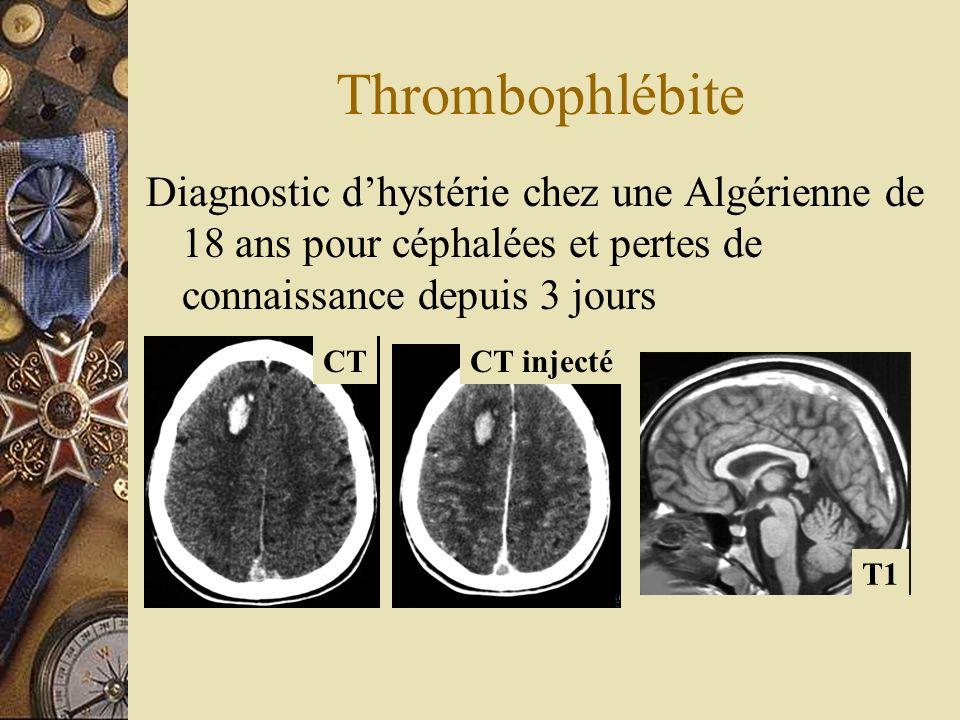 ThrombophlébiteDiagnostic d'hystérie chez une Algérienne de 18 ans pour céphalées et pertes de connaissance depuis 3 jours.