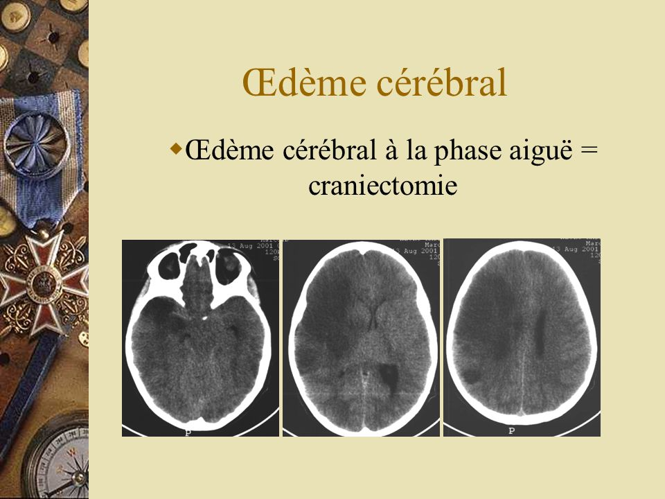 Œdème cérébral à la phase aiguë = craniectomie