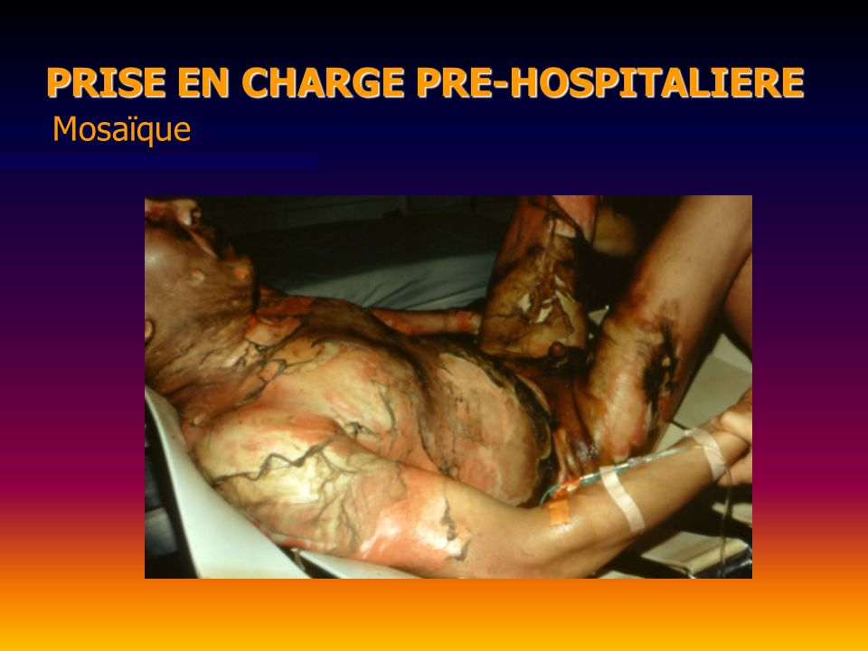 PRISE EN CHARGE PRE-HOSPITALIERE