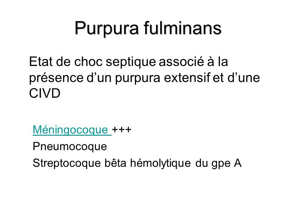 Purpura fulminans Etat de choc septique associé à la présence d'un purpura extensif et d'une CIVD. Méningocoque +++