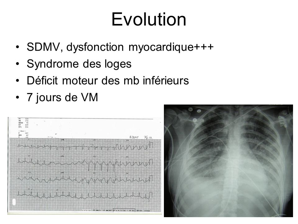 Evolution SDMV, dysfonction myocardique+++ Syndrome des loges