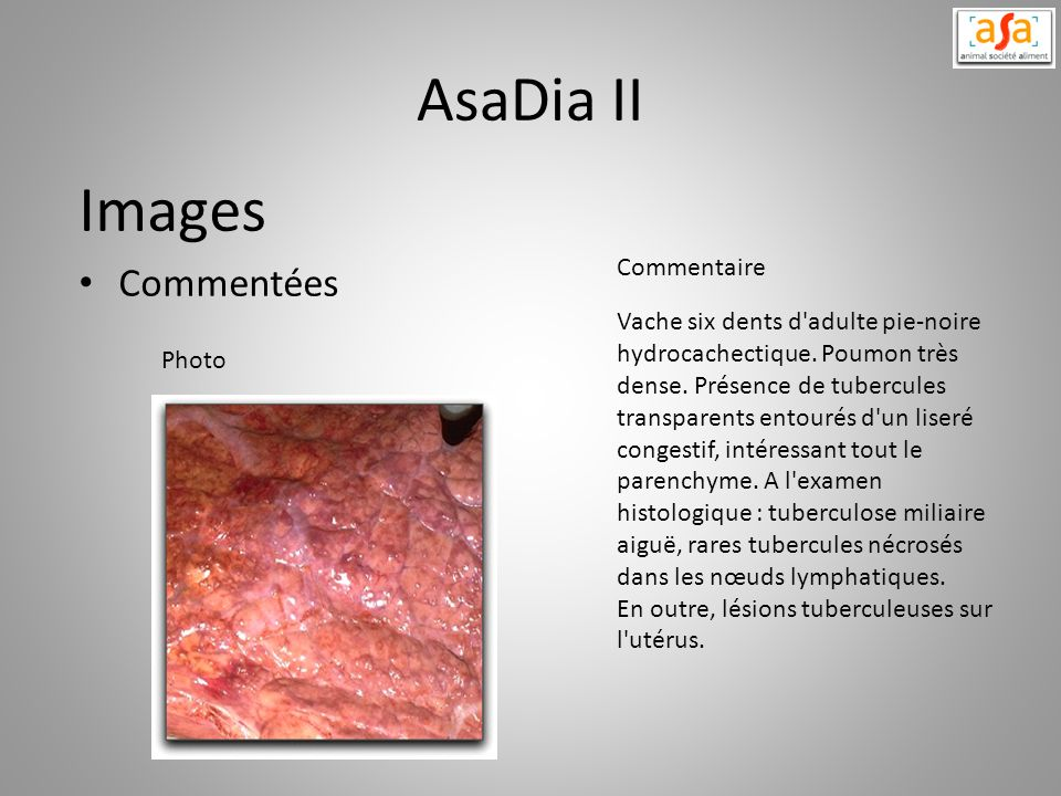 AsaDia II Images Commentées Commentaire