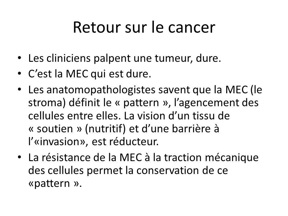 Retour sur le cancer Les cliniciens palpent une tumeur, dure.
