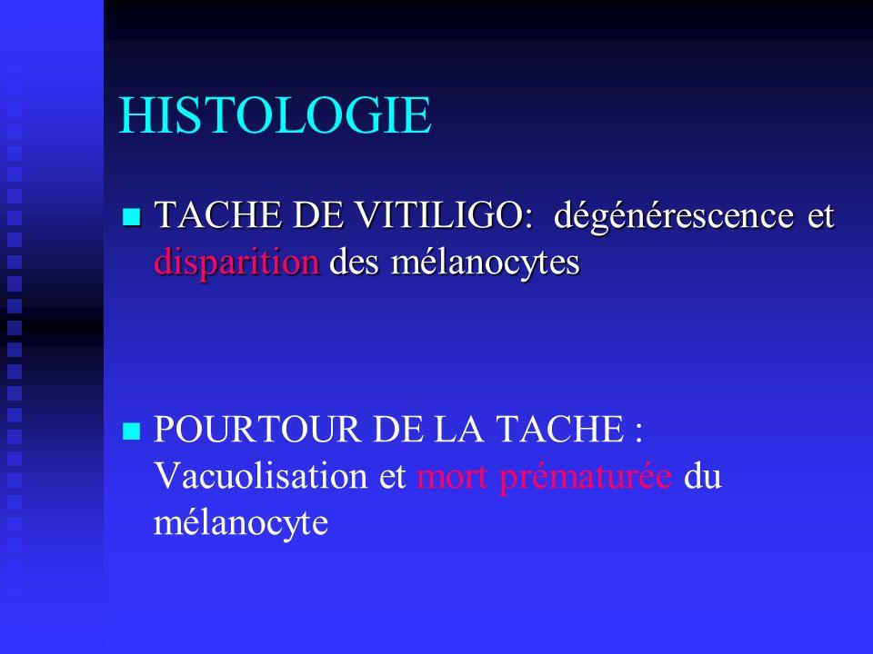 HISTOLOGIE TACHE DE VITILIGO: dégénérescence et disparition des mélanocytes.