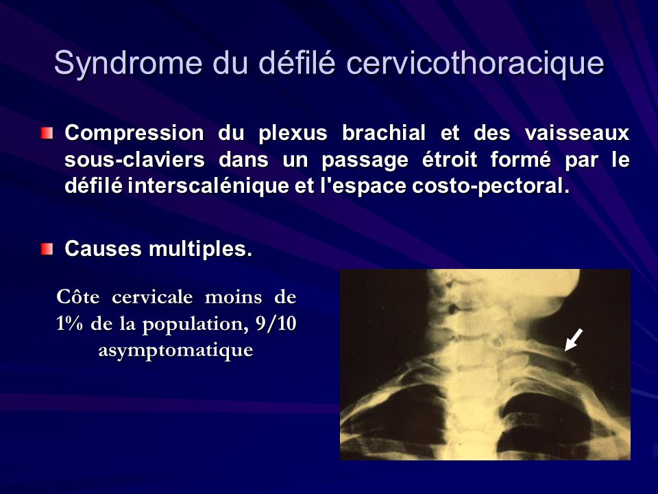 Syndrome du défilé cervicothoracique