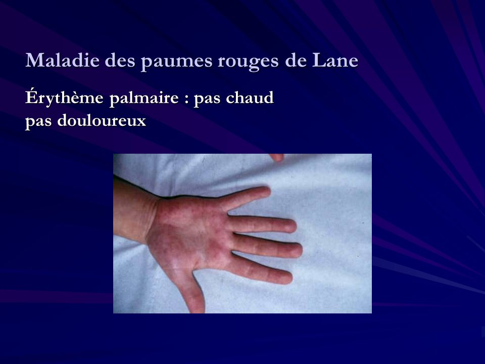Maladie des paumes rouges de Lane