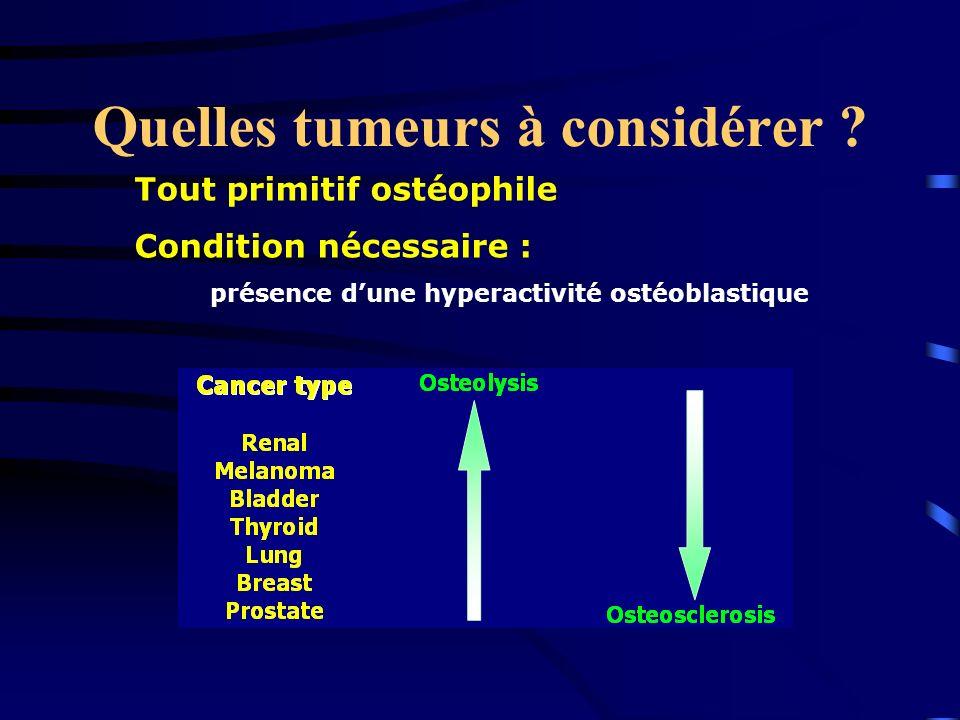 Quelles tumeurs à considérer