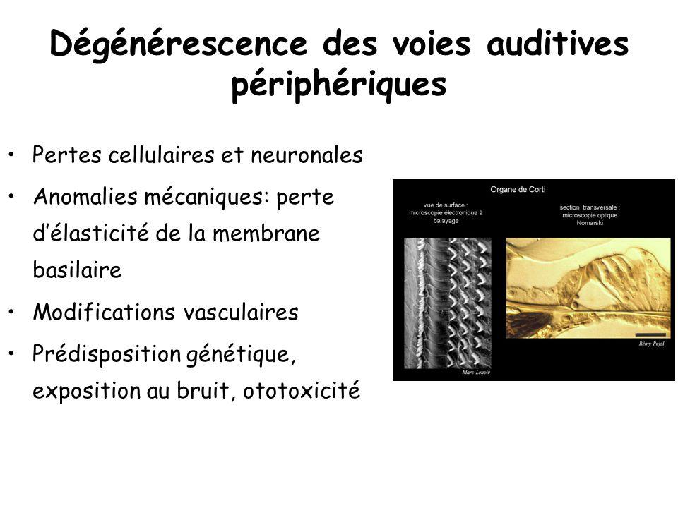 Dégénérescence des voies auditives périphériques