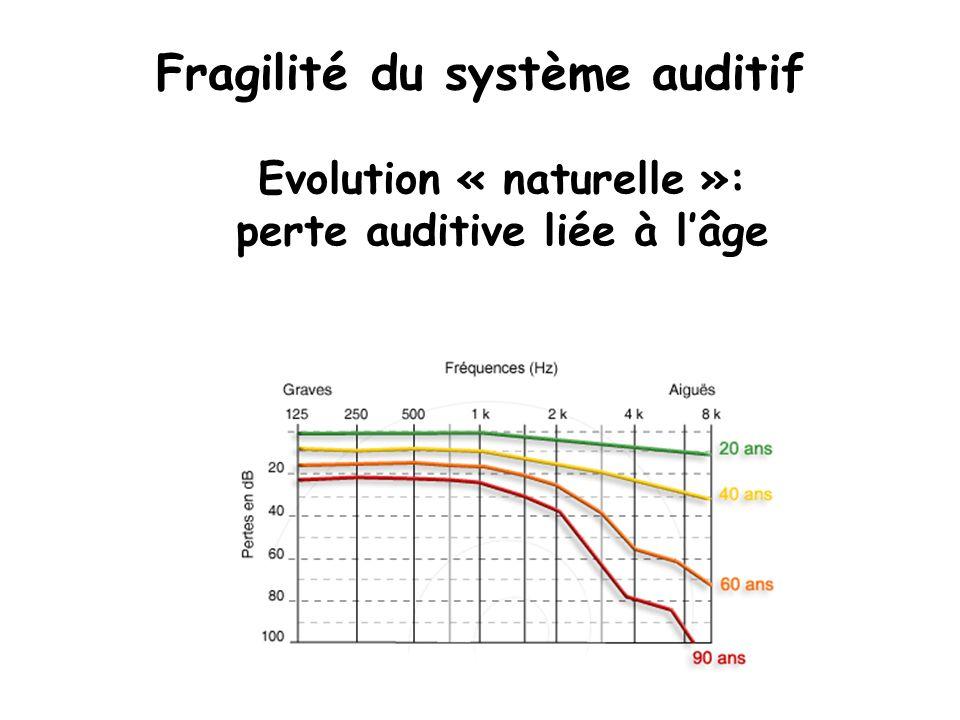 Fragilité du système auditif