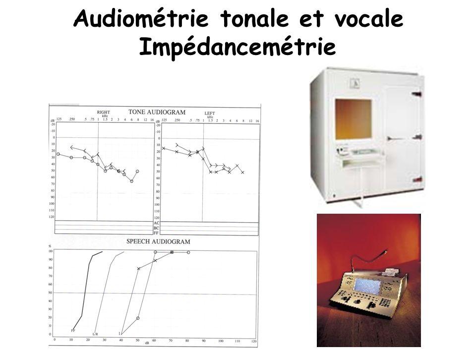 Audiométrie tonale et vocale Impédancemétrie