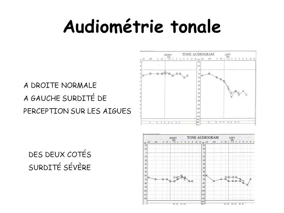 Audiométrie tonale A DROITE NORMALE A GAUCHE SURDITÉ DE