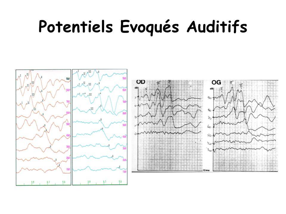 Potentiels Evoqués Auditifs